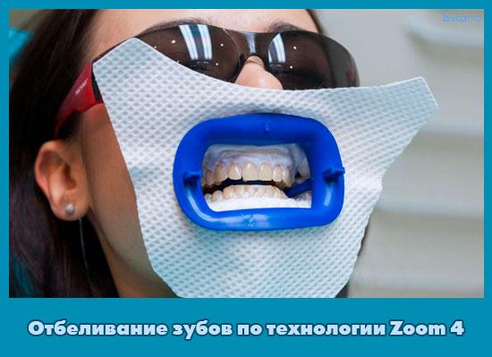 Отбеливание зубов по технологии Zoom 4